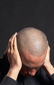 Chronic Fatigue Syndrome Treatment (25j)